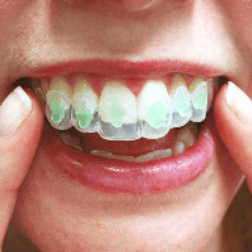 Hampaiden valkaisu kotona - Bocca