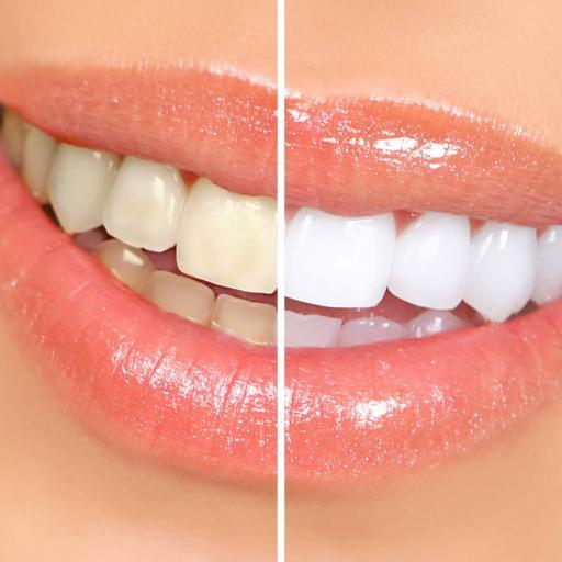 Hampaiden kristallivalkaisu - Bocca